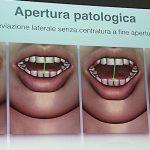 clinica-viana-occlusione-atm-postura-3